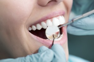 dental exam and cleaning white rock