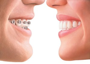 invisalign Braces in white rock