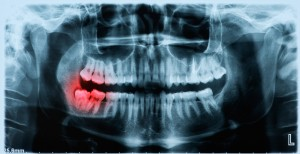 wisdom teeth extraction