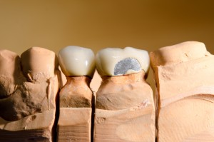 cracked teeth treatment in white rock
